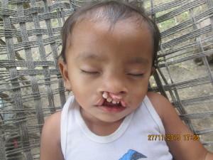 Jeffty before his cleft lip repair surgery